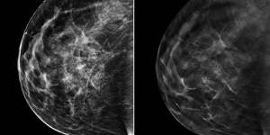 140624-2d-3d-mammograms-jsw-136p_b324f3843fa4547c1925c97fadba01c5.nbcnews-ux-960-800