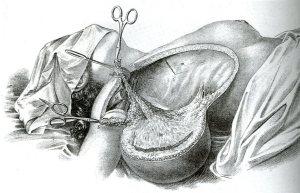 RadicalMastectomy